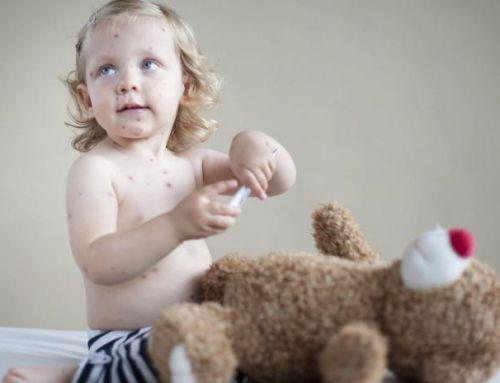 Le più comuni malattie infettive dell'infanzia